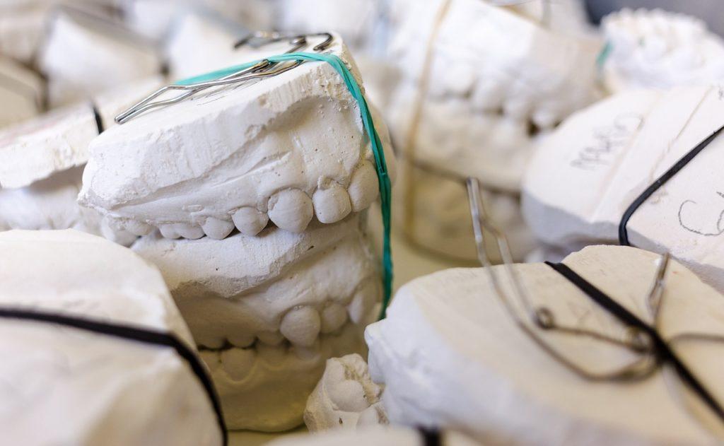 歯形の模型
